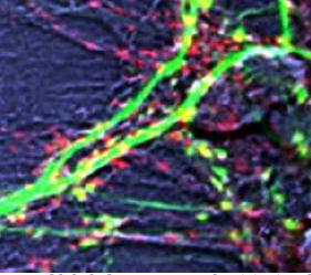 neuroni inattivi