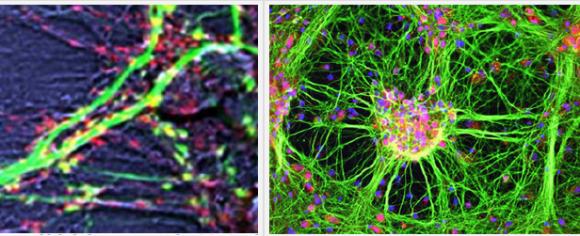 neuroni2